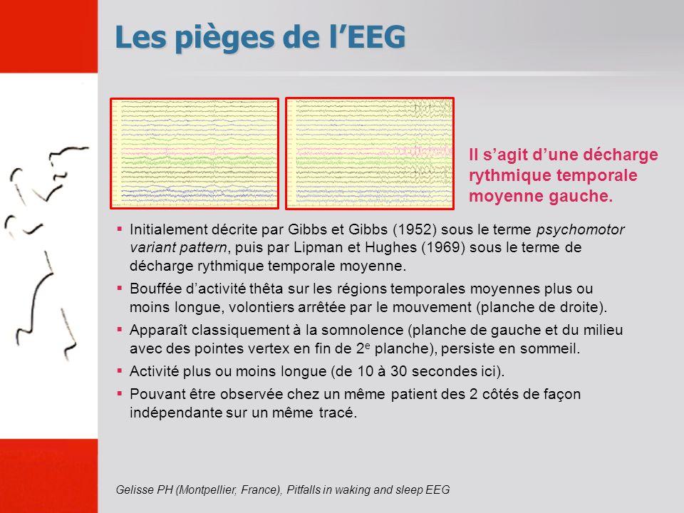 Les pièges de l'EEG Il s'agit d'une décharge rythmique temporale