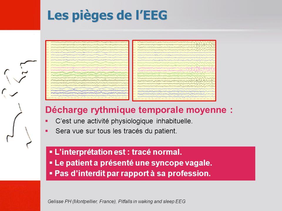 Les pièges de l'EEG Décharge rythmique temporale moyenne :