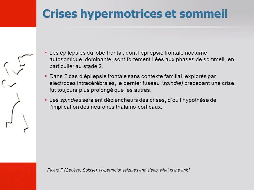Crises hypermotrices et sommeil