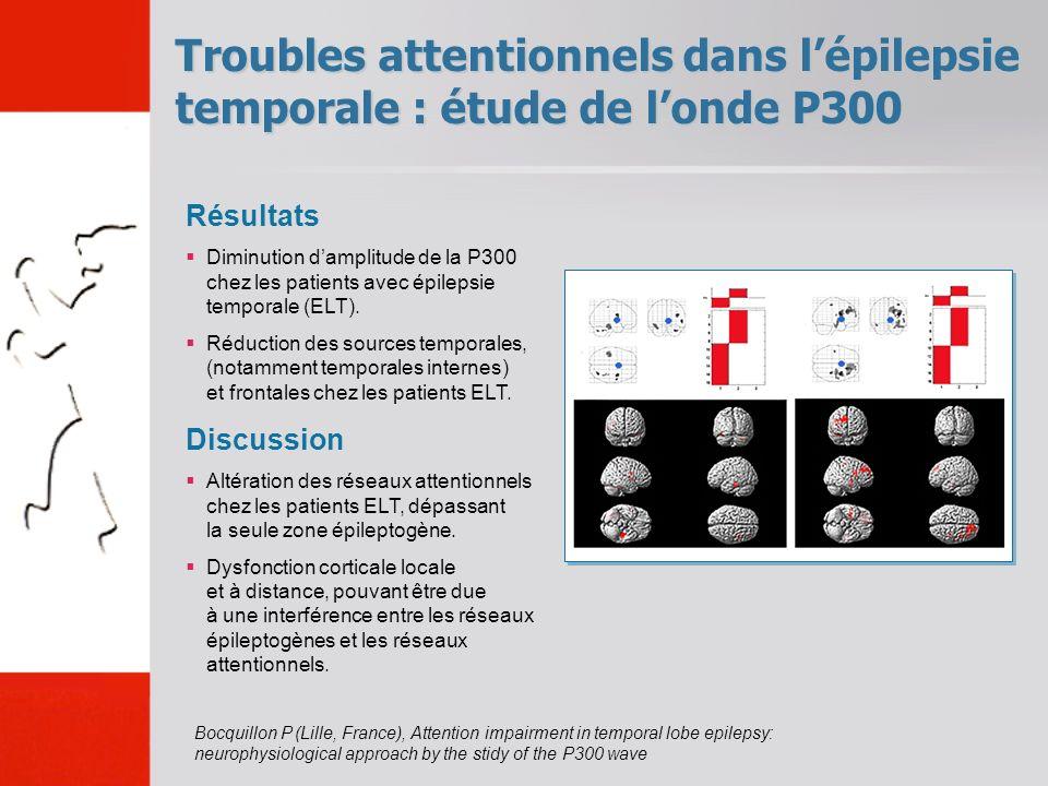 Troubles attentionnels dans l'épilepsie temporale : étude de l'onde P300