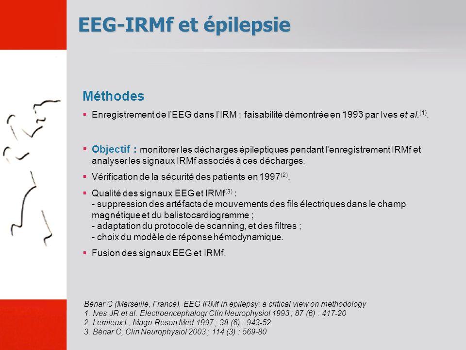 EEG-IRMf et épilepsie Méthodes