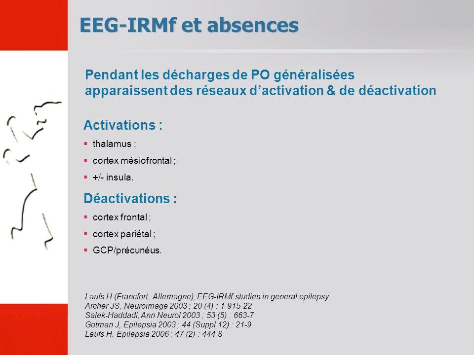 EEG-IRMf et absences Pendant les décharges de PO généralisées apparaissent des réseaux d'activation & de déactivation.