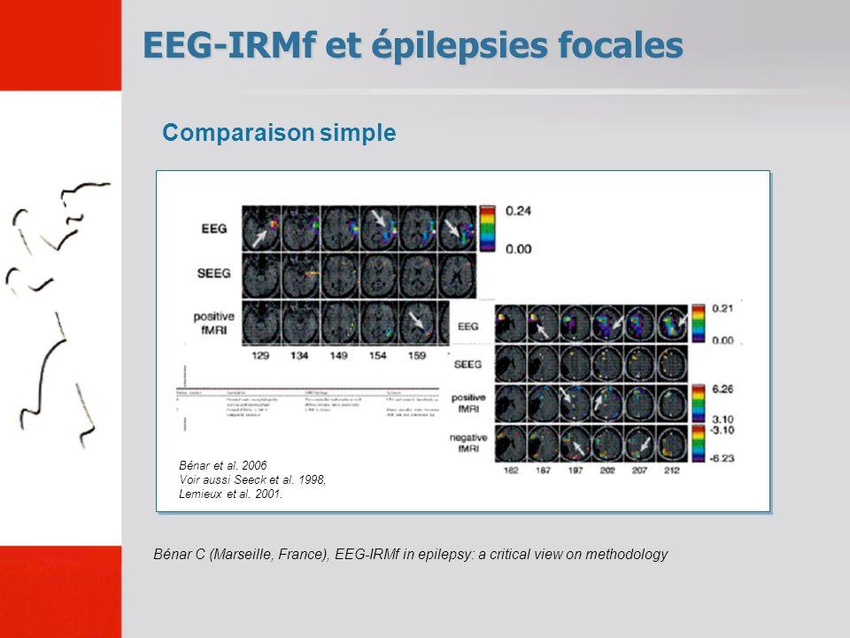 EEG-IRMf et épilepsies focales