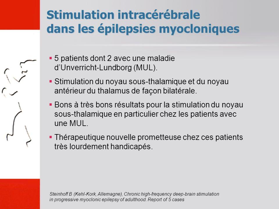 Stimulation intracérébrale dans les épilepsies myocloniques