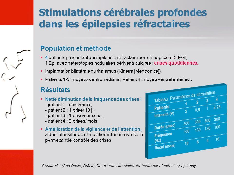 Stimulations cérébrales profondes dans les épilepsies réfractaires