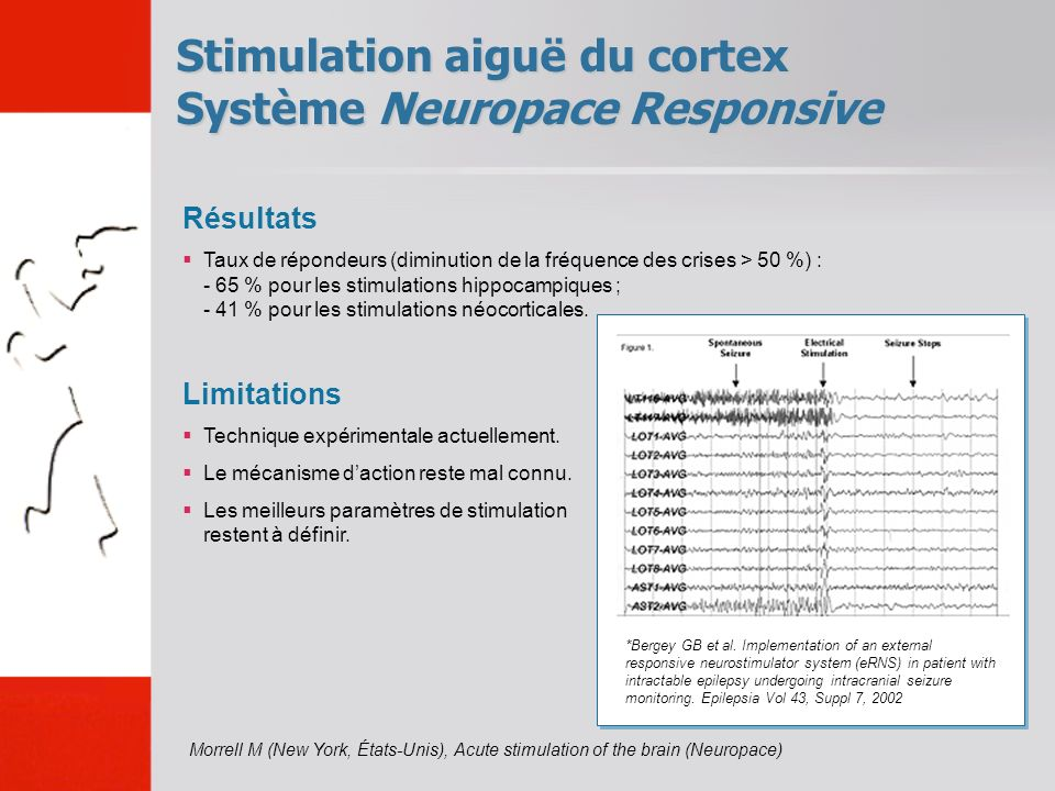 Stimulation aiguë du cortex Système Neuropace Responsive
