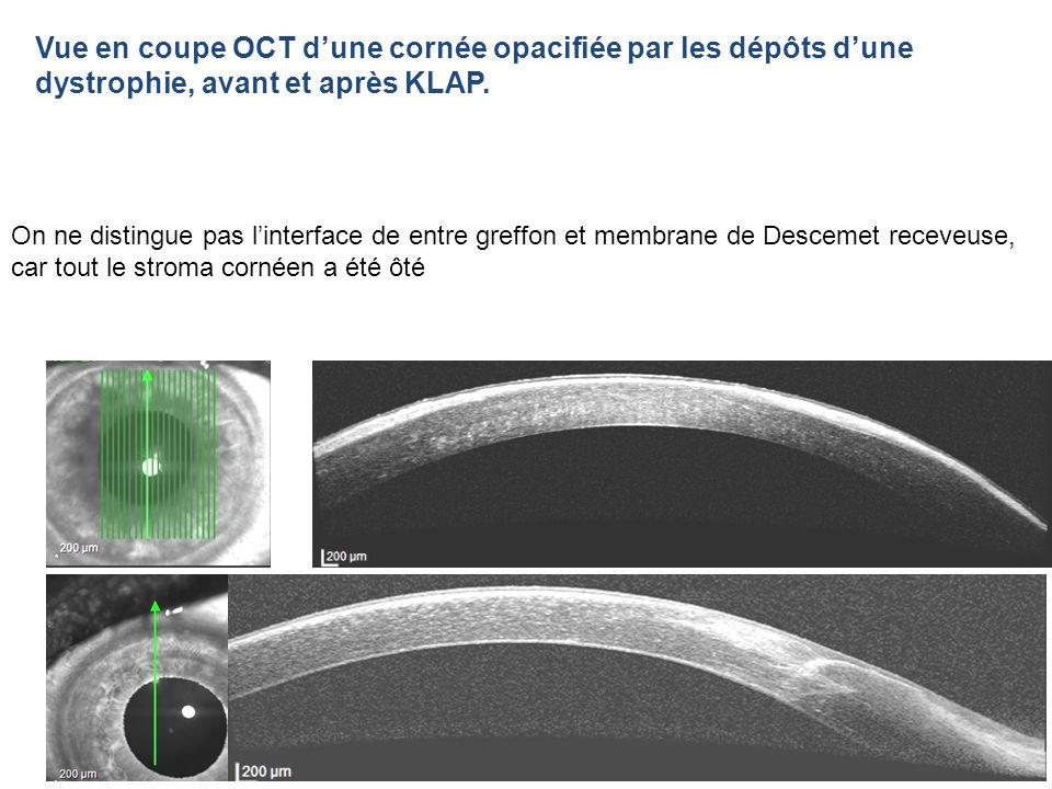 Vue en coupe OCT d'une cornée opacifiée par les dépôts d'une dystrophie, avant et après KLAP.
