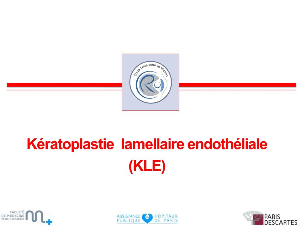 Kératoplastie lamellaire endothéliale