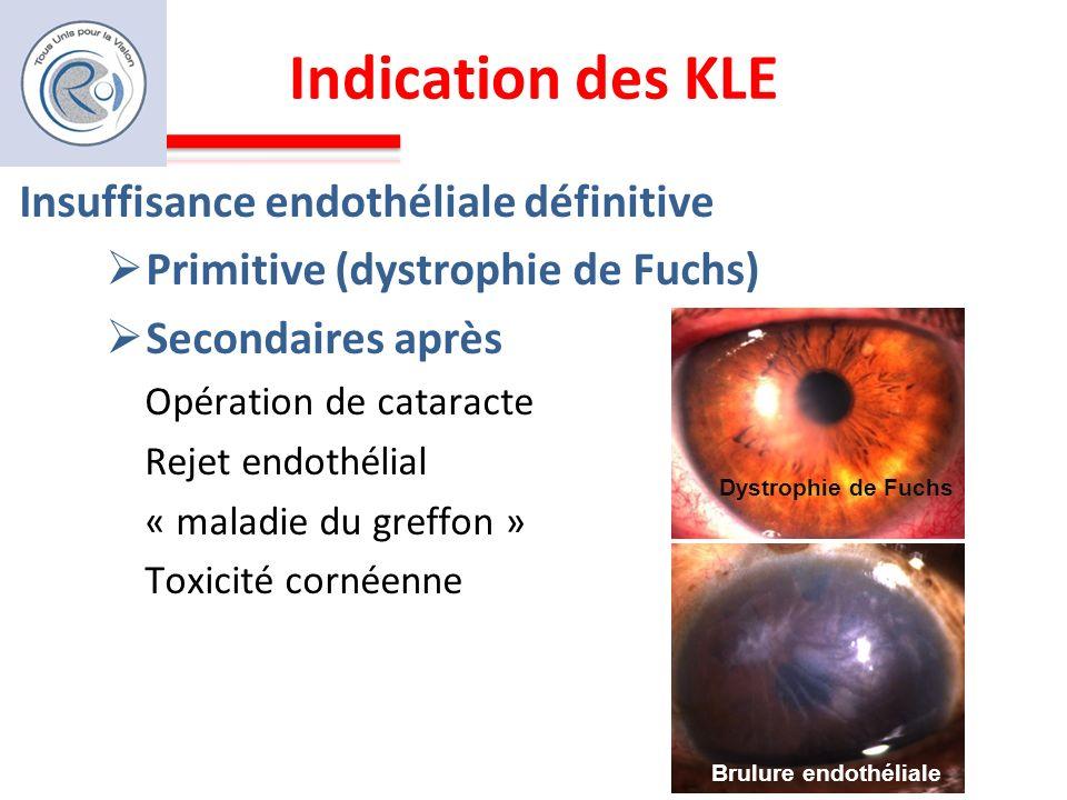 Indication des KLE Insuffisance endothéliale définitive