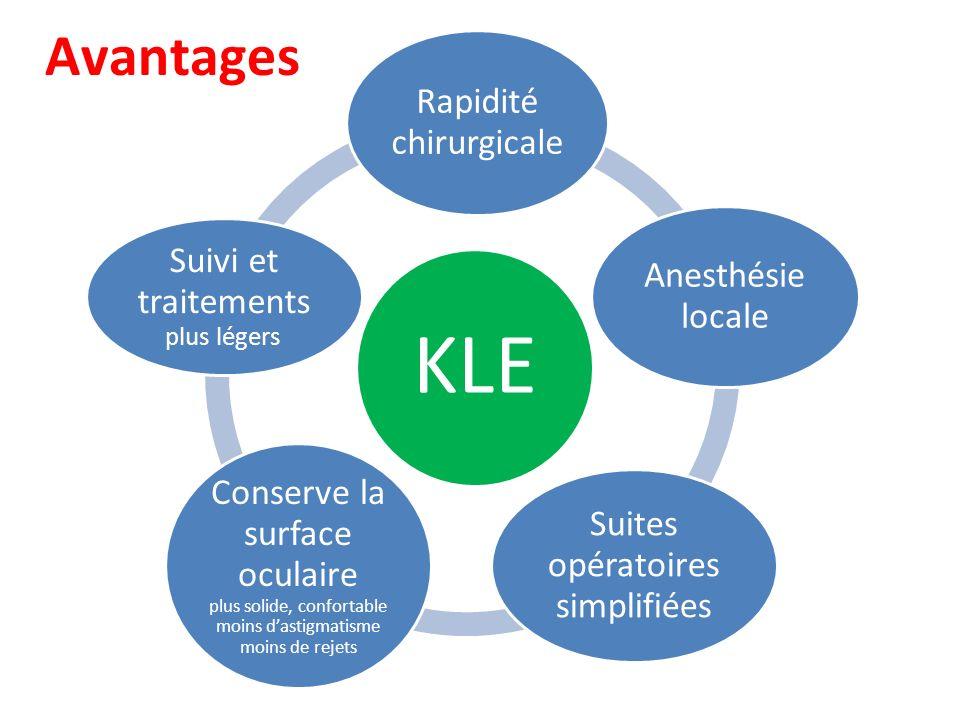 Avantages KLE. Rapidité chirurgicale. Anesthésie locale. Suites opératoires simplifiées.