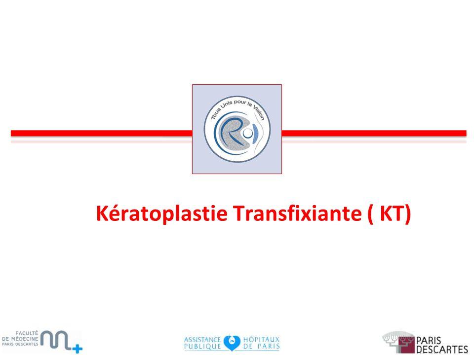 Kératoplastie Transfixiante ( KT)
