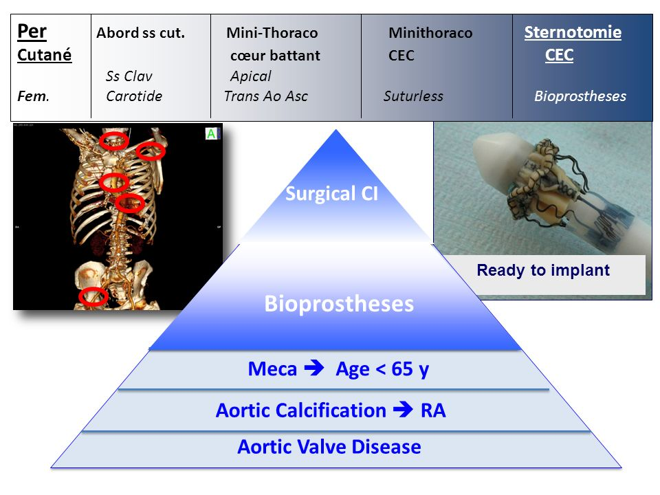 Bioprostheses Per Abord ss cut. Mini-Thoraco Minithoraco Sternotomie