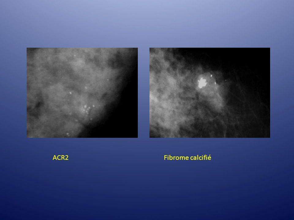 ACR2 Fibrome calcifié