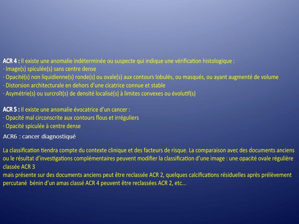 ACR6 : cancer diagnostiqué