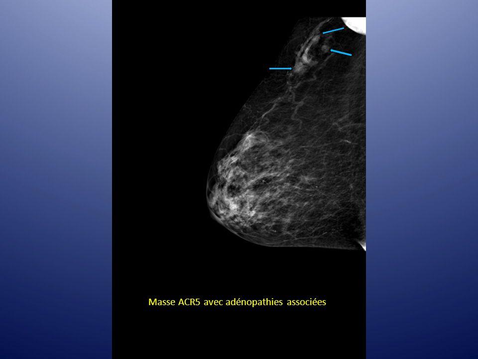 Masse ACR5 avec adénopathies associées