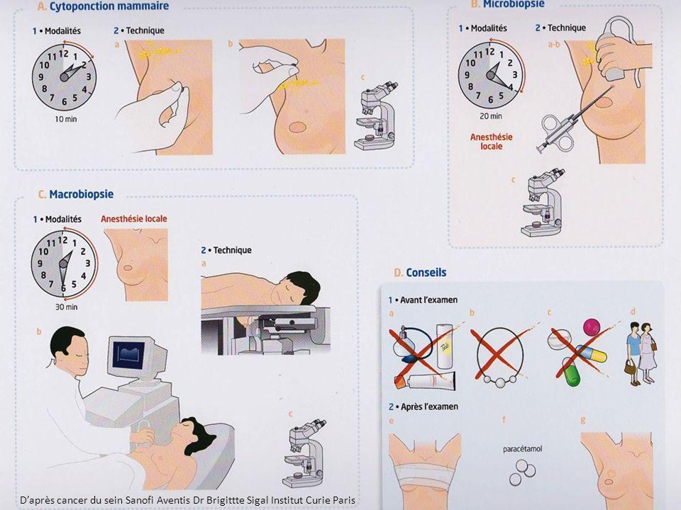 D'après cancer du sein Sanofi Aventis Dr Brigittte Sigal Institut Curie Paris