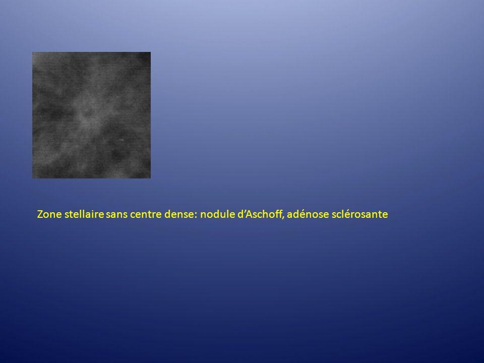 Zone stellaire sans centre dense: nodule d'Aschoff, adénose sclérosante