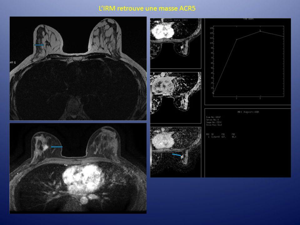 L'IRM retrouve une masse ACR5
