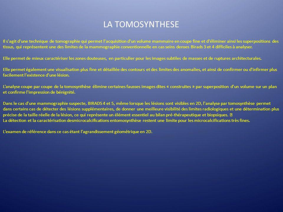 LA TOMOSYNTHESE