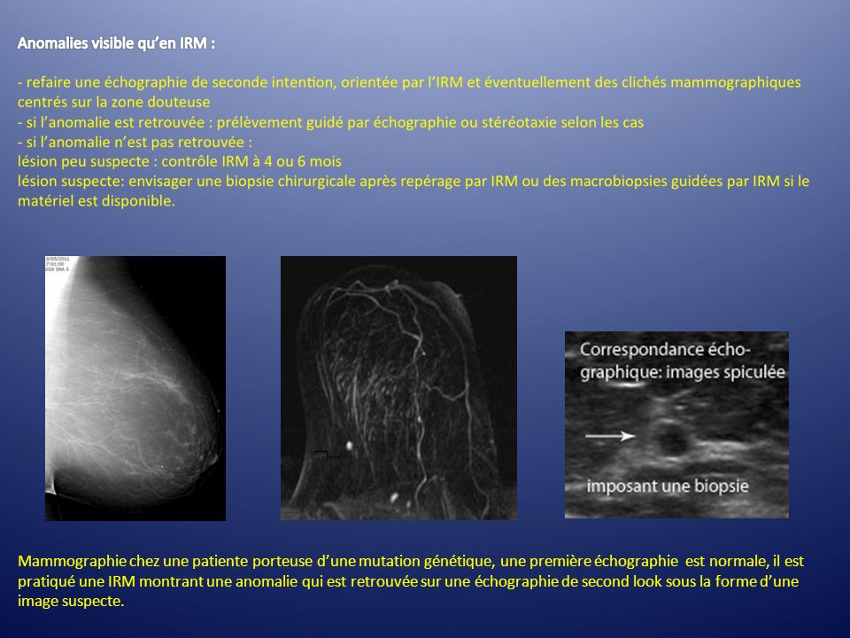 Mammographie chez une patiente porteuse d'une mutation génétique, une première échographie est normale, il est pratiqué une IRM montrant une anomalie qui est retrouvée sur une échographie de second look sous la forme d'une image suspecte.
