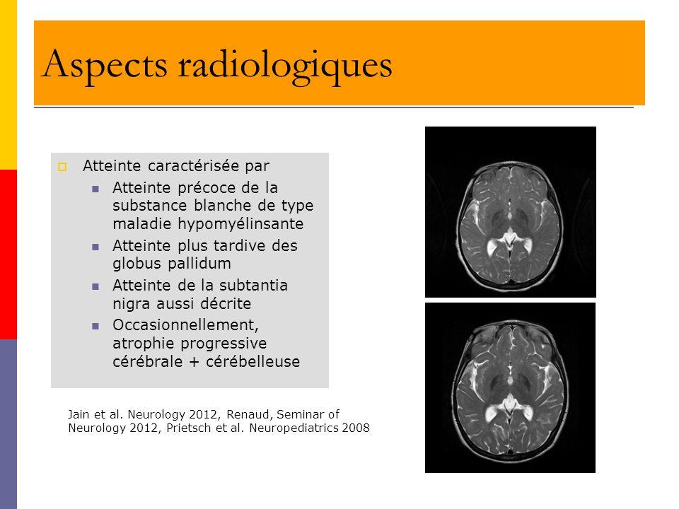 Aspects radiologiques