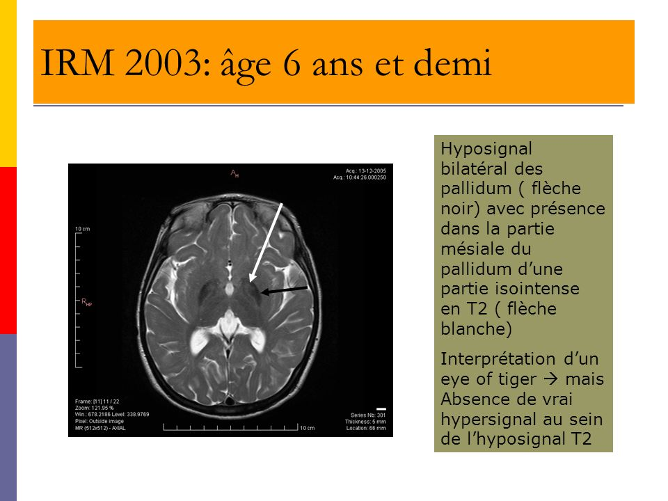 IRM 2003: âge 6 ans et demi