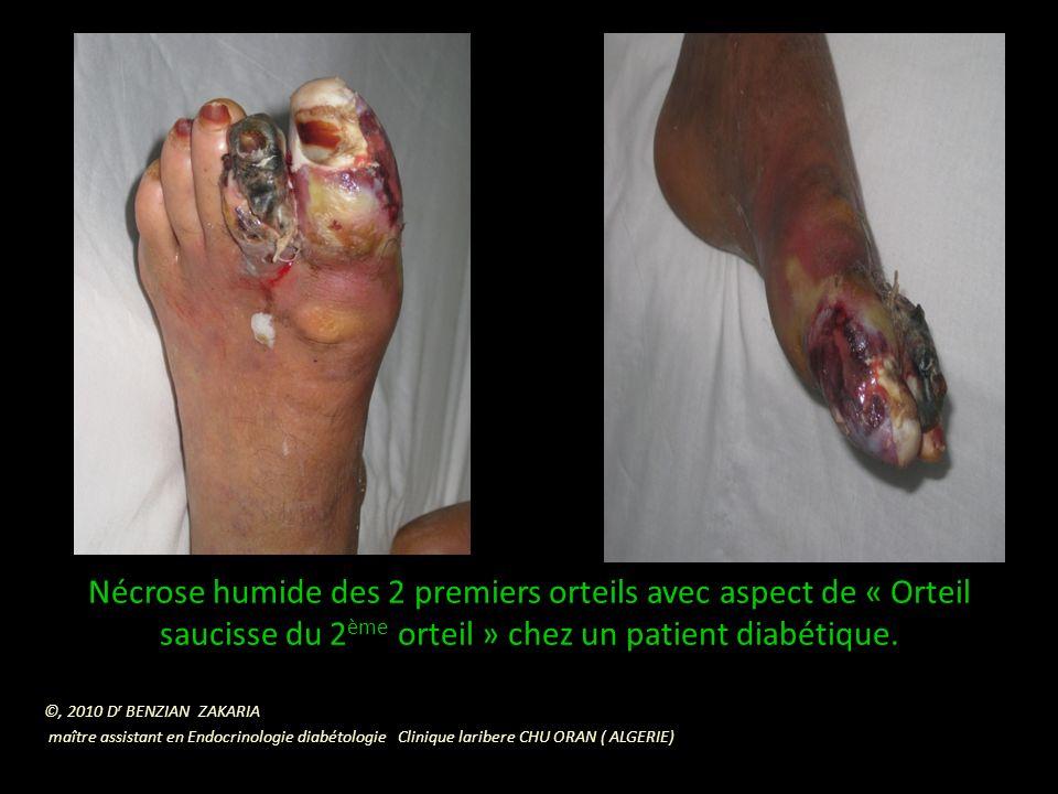 Nécrose humide des 2 premiers orteils avec aspect de « Orteil saucisse du 2ème orteil » chez un patient diabétique.
