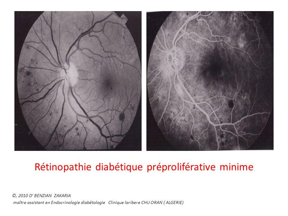 Rétinopathie diabétique préproliférative minime