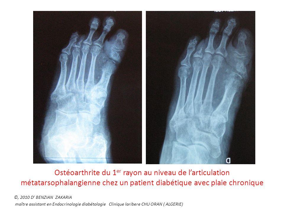 Ostéoarthrite du 1er rayon au niveau de l'articulation métatarsophalangienne chez un patient diabétique avec plaie chronique