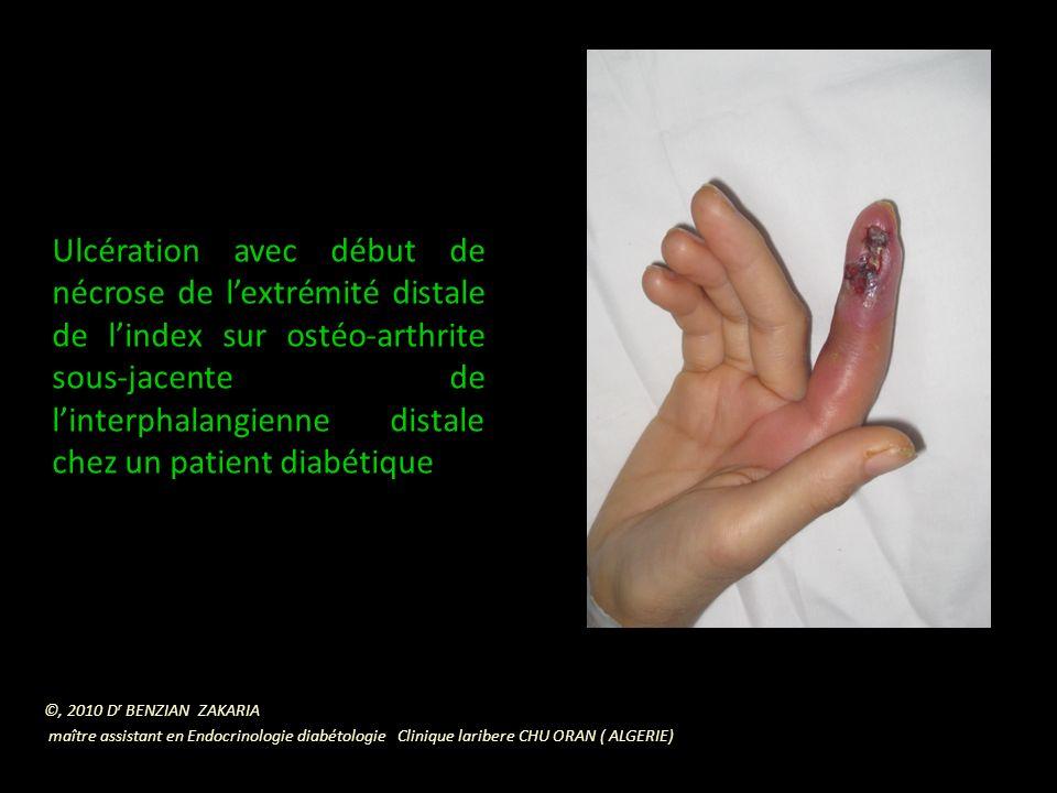 Ulcération avec début de nécrose de l'extrémité distale de l'index sur ostéo-arthrite sous-jacente de l'interphalangienne distale chez un patient diabétique