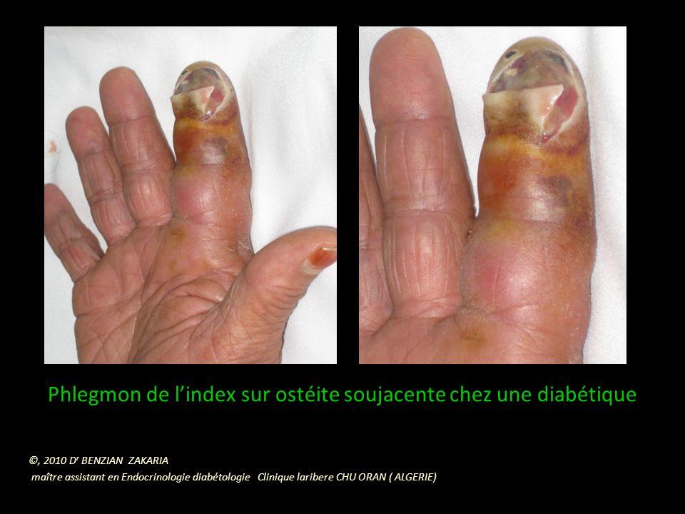 Phlegmon de l'index sur ostéite soujacente chez une diabétique