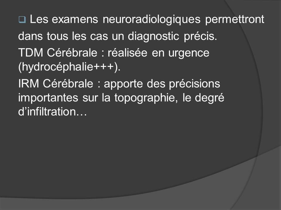 Les examens neuroradiologiques permettront