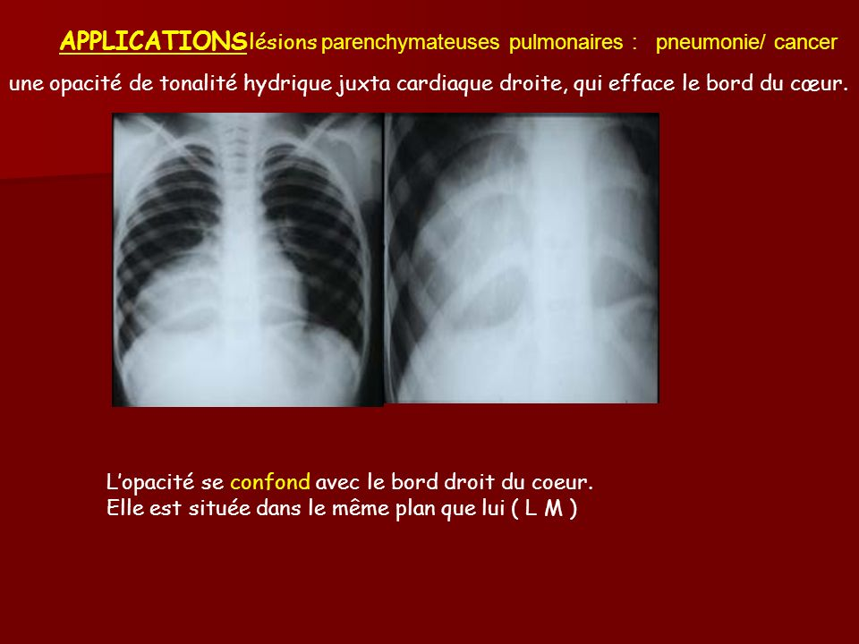 APPLICATIONS lésions parenchymateuses pulmonaires : pneumonie/ cancer