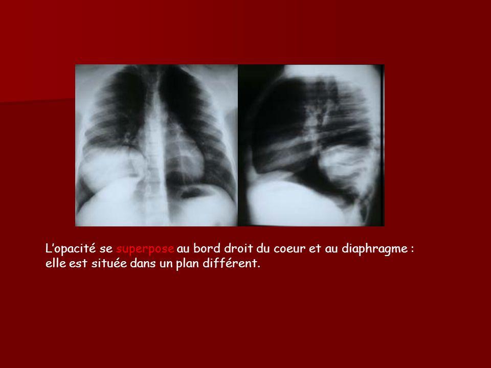 L'opacité se superpose au bord droit du coeur et au diaphragme : elle est située dans un plan différent.