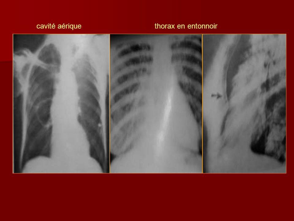 cavité aérique thorax en entonnoir
