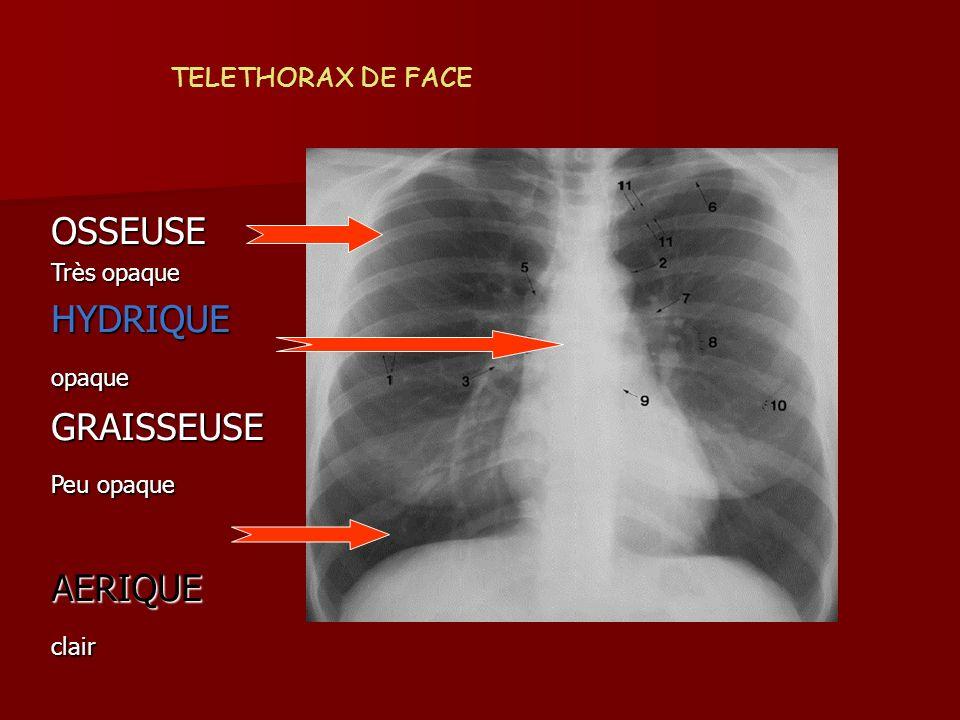 OSSEUSE HYDRIQUE GRAISSEUSE AERIQUE TELETHORAX DE FACE Très opaque