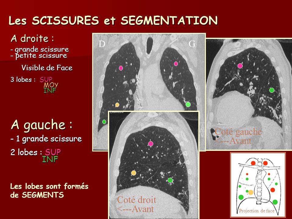 Les SCISSURES et SEGMENTATION