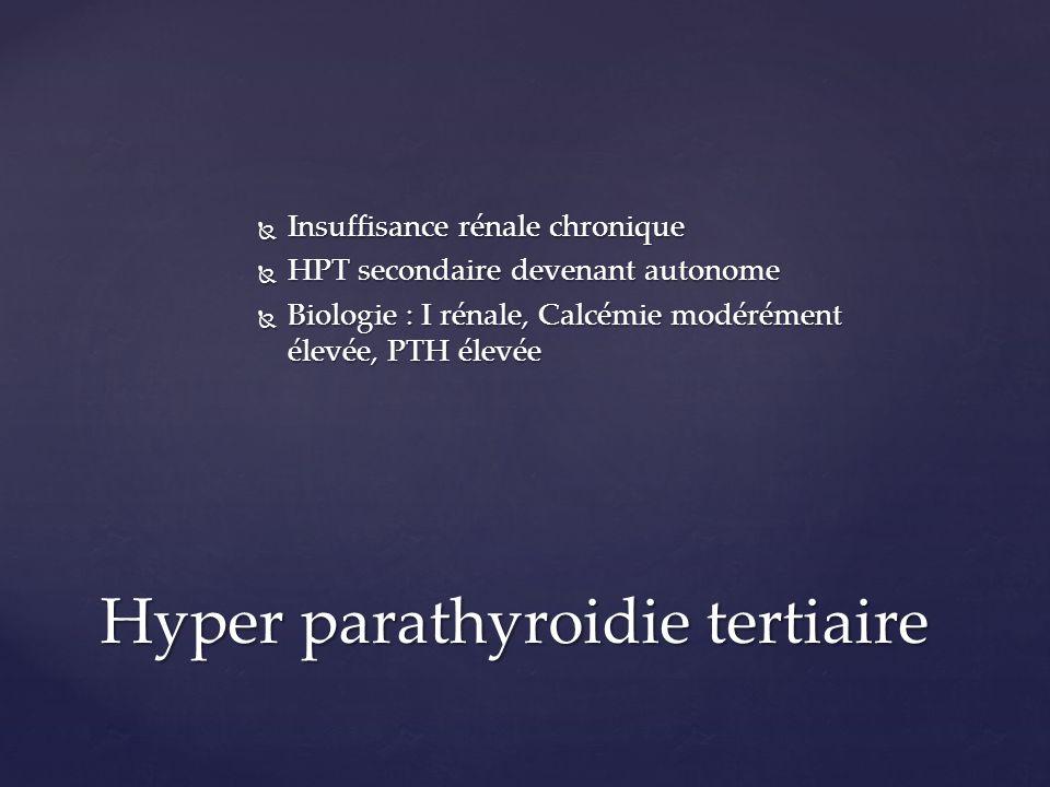 Hyper parathyroidie tertiaire