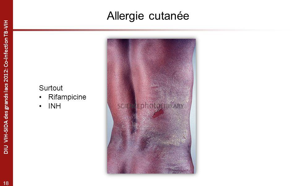 Allergie cutanée Surtout Rifampicine INH