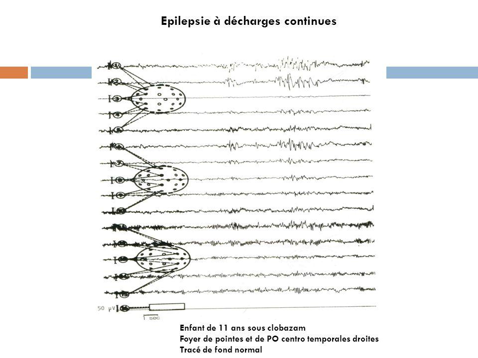 Epilepsie à décharges continues