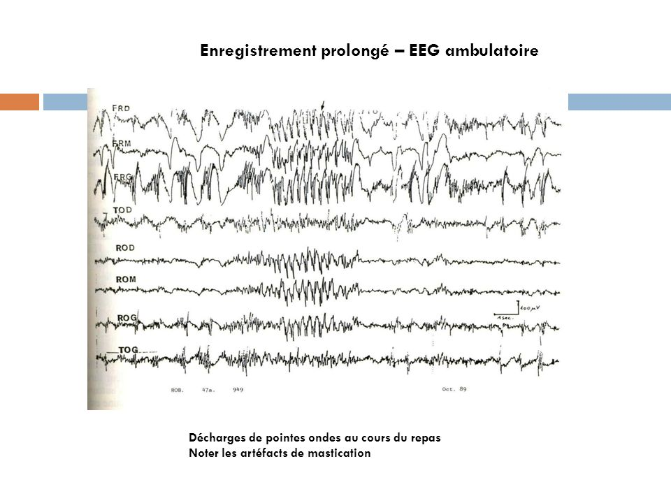 Enregistrement prolongé – EEG ambulatoire