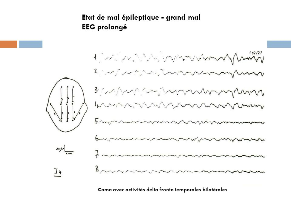 Etat de mal épileptique - grand mal EEG prolongé