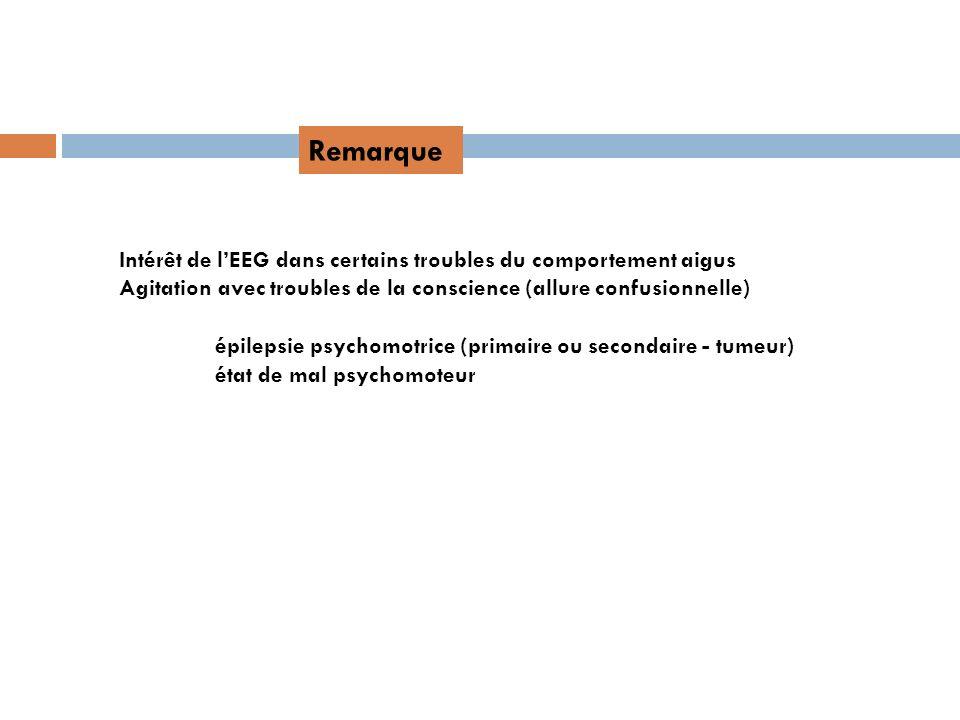 Remarque Intérêt de l'EEG dans certains troubles du comportement aigus