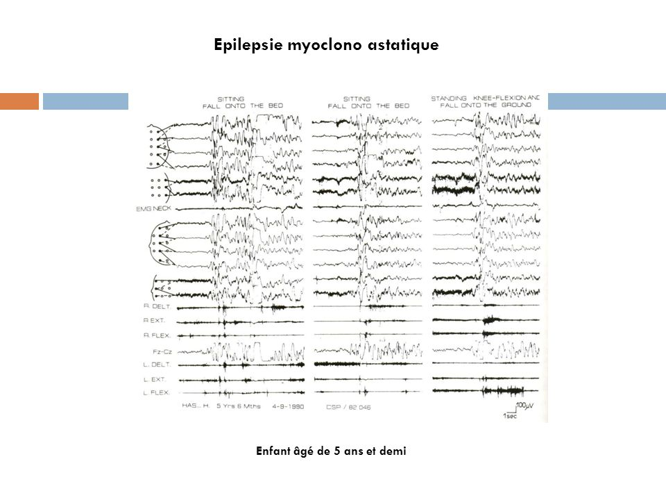 Epilepsie myoclono astatique
