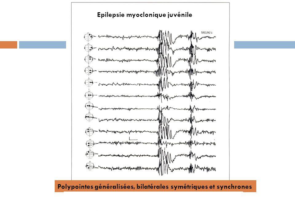 Epilepsie myoclonique juvénile