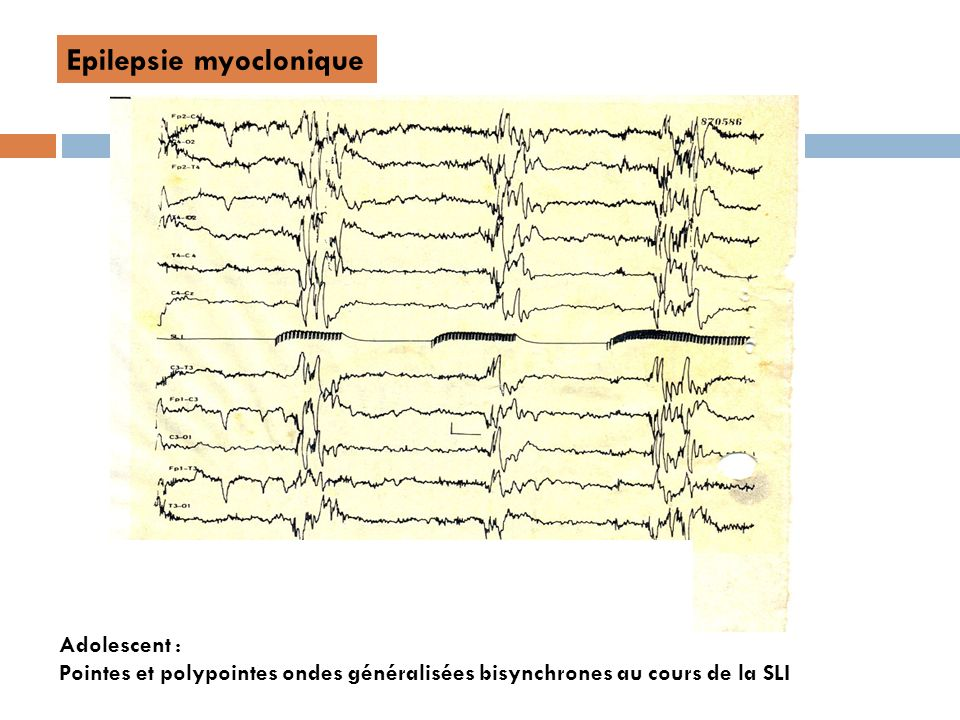 Epilepsie myoclonique