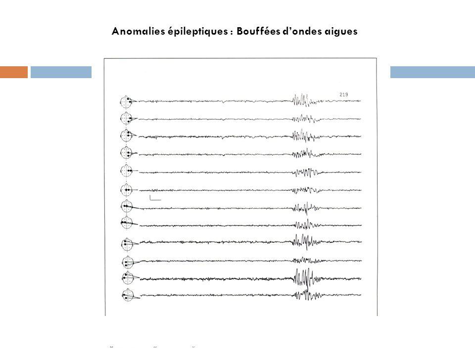 Anomalies épileptiques : Bouffées d'ondes aigues