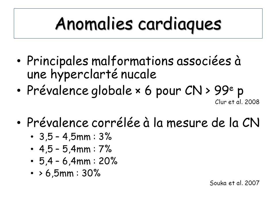 Anomalies cardiaques Principales malformations associées à une hyperclarté nucale. Prévalence globale × 6 pour CN > 99e p.