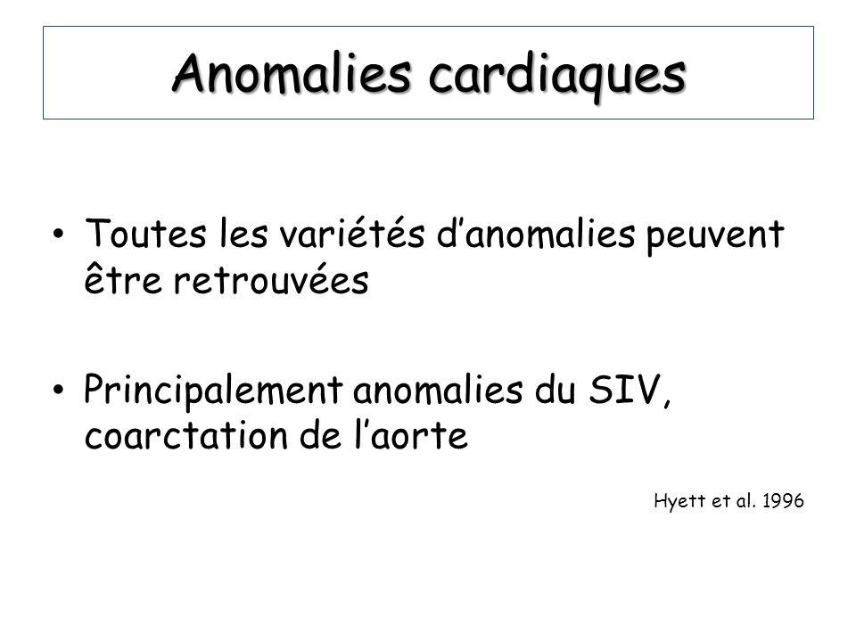 Anomalies cardiaques Toutes les variétés d'anomalies peuvent être retrouvées. Principalement anomalies du SIV, coarctation de l'aorte.