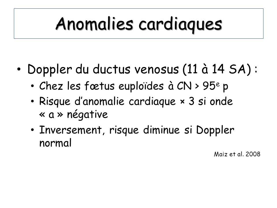 Anomalies cardiaques Doppler du ductus venosus (11 à 14 SA) :